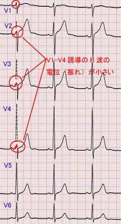 心電図 r 波 増 高 不良